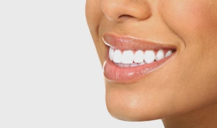 Cara Praktis Memutihkan Gigi Secara Alami Dan Cepat Feminisa Page 4